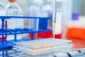 Hematologie laboratorium